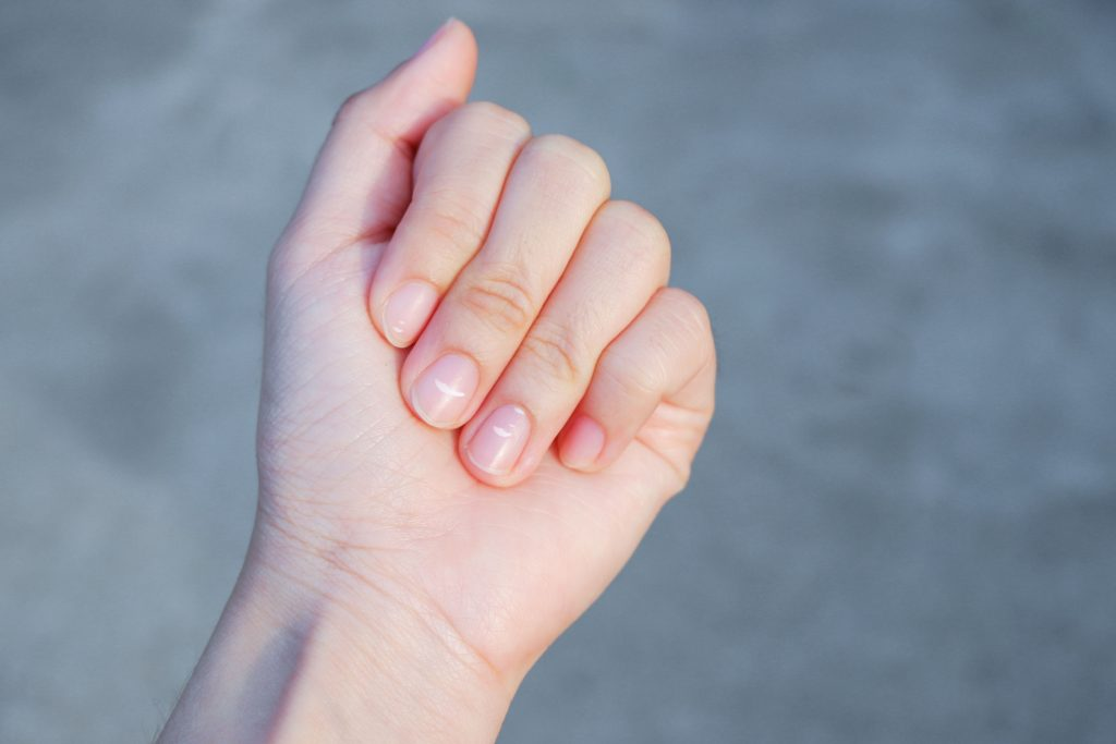 mano con uñas manchadas